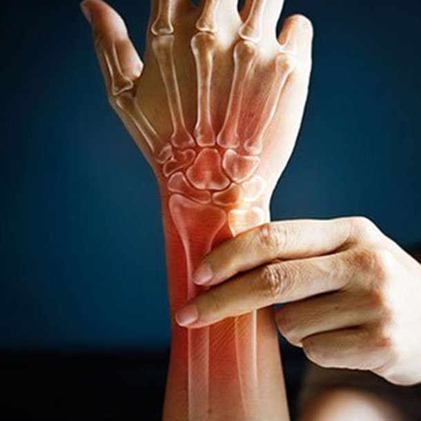 What causes rheumatoid arthritis